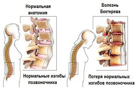 Болезни суставов – причины, симптомы и лечение болезней суставов