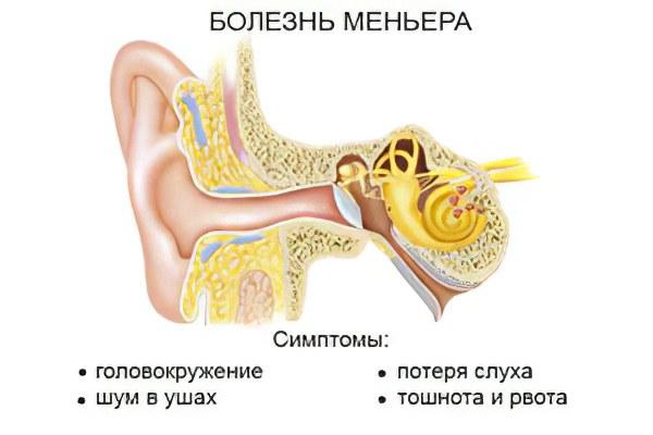 Болезнь (синдром) Меньера – причины, симптомы и лечение