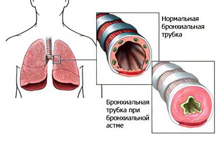 здравоохранение бронхиальная астма
