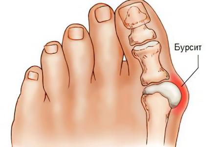Мастопатия - Причины, симптомы и лечение. МЖ.