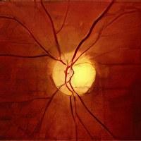 своей задачей народные методы лечения зрительного нерва капиллярному