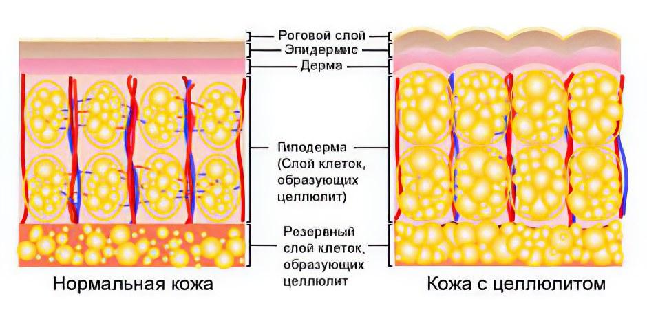 Влияние вибрамассажера на целлюлит