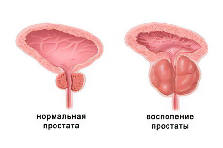 Если при лечение простатита пропадает сперма что это может быть ответы