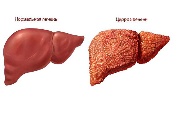 Стандарт оказания медицинской помощи больным с вирусными гепатитами