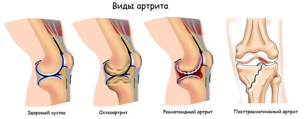 золотой ус и лечение суставов