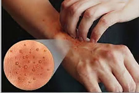 Примерное меню при дерматите на коже у пожилого человека