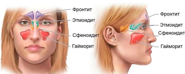 Cимптомы гайморита у взрослых: первые признаки, как проявляется, фото | Чем лечить гайморит: симптомы и лечение гайморита у взрослых за 5 дней | Гайморит у взрослых – причины, признаки и симптомы гайморита. Можно ли греть нос?