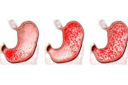 Гастрит – причины и симптомы заболевания желудка картинки
