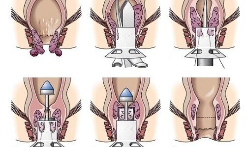 Операционное лечение геморроя