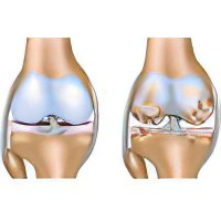 Остеоартроз коленного сустава лечение заболевания народными методами