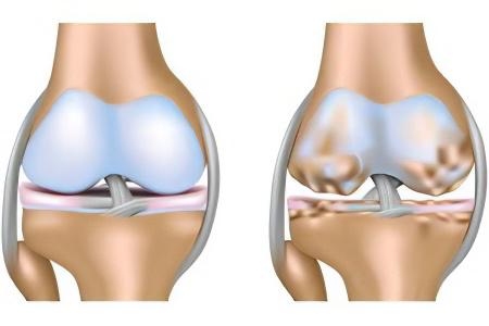 Гонартроз коленного сустава 1, 2, 3 степени – виды, симптомы ...