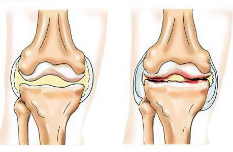 боли после сидения в тазобедренном суставе