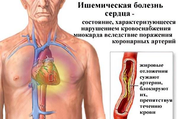 Инсулин на латинском