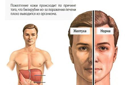Гепатит с core отрицательный ns отрицательный