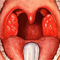 Дезринит при аденоидах – показания, плюсы и минусы