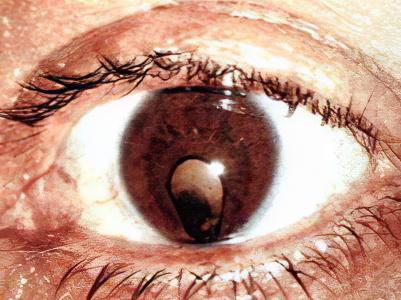 катаракта мушки