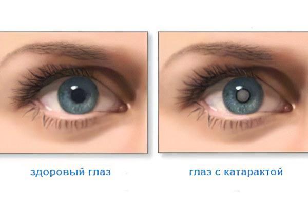 глазные капли от паразитов для человека
