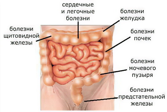 очищение кишечника минералкой