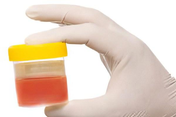 Причины и лечение крови в моче при цистите у женщин
