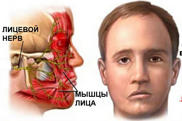 Паралич лицевого нерва электромиография лечили зуб принадавливании болит зуб рядом