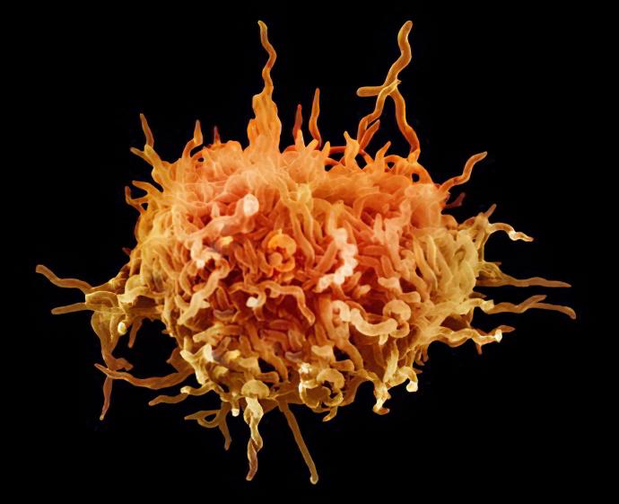 Что такое микоплазмоз?