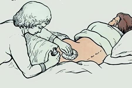 Препараты для лечения кольпита при беременности