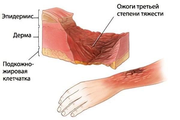 Полное восстановление кожи