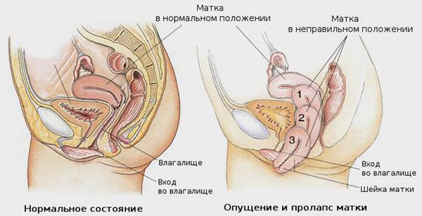 триожиналь при зуде с опущением матки