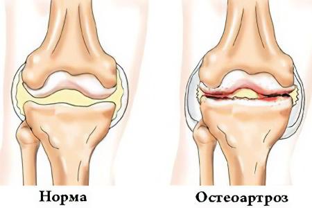Симптомы и лечение остеоартроза коленного сустава заговоры при боли в суставах