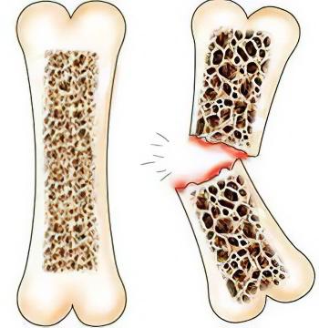 диета при переломе ноги