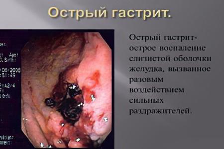 желудочный запах изо рта как избавиться