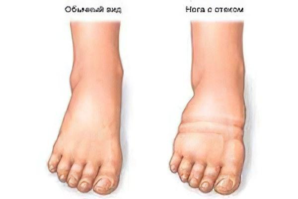 Резкая отечность голеностопных суставов суставные уколы при артрите