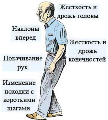 Сосудистое заболевание спинного мозга лечение