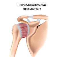 Изображение - Периартрит коленного сустава лечение plecheopatochnii_periatrit7