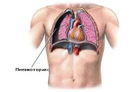 Пневмоторакс - причины, признаки, симптомы и лечение