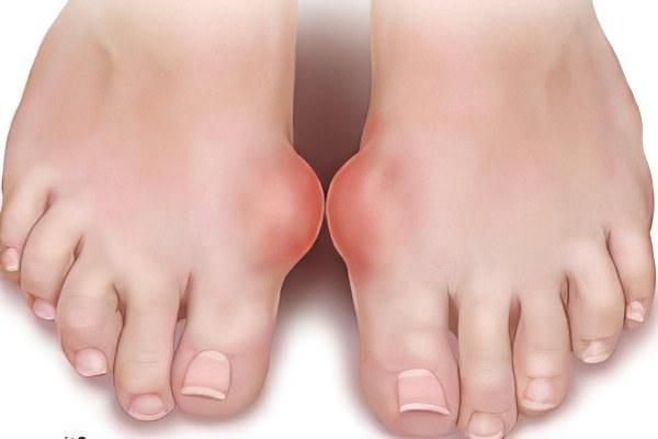Подагра - причины, признаки, симптомы и лечение. Подагра на ногах ...