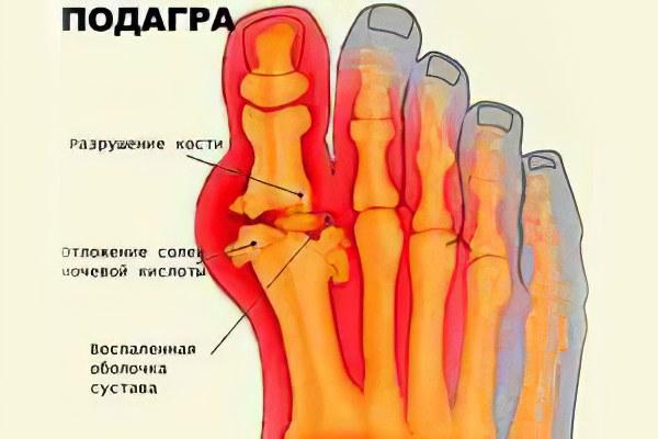Сустав большого пальца ноги подагра выворачиваются суставы