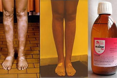 Желтуха гепатит а прививка от нее