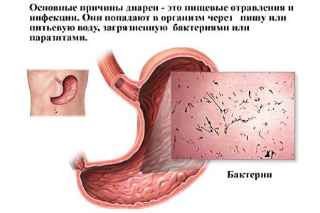 Причины диареи у взрослых