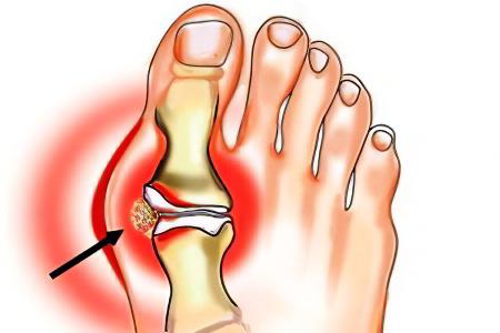 Артроз суставов пальцев ступинатор повреждение связок голеностопного сустава лечени лангет