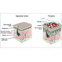 Как избавиться от псориаза навсегда