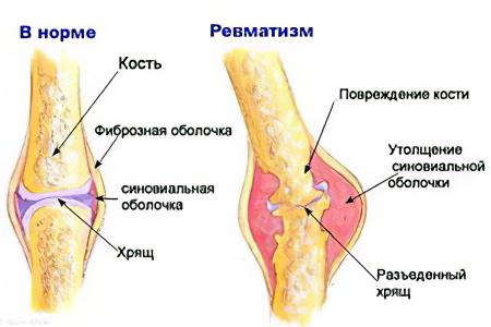 Ревматизм суставов – причины, признаки, симптомы, осложнения и ...
