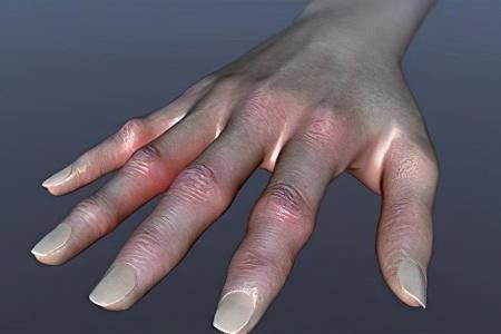 Ревматоидный артрит – причины, симптомы, стадии и диагностика ...