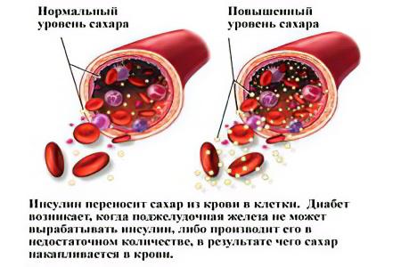 lekarstva-ot-povishennogo-davleniya-bez-povisheniya-sahara-v-krovi