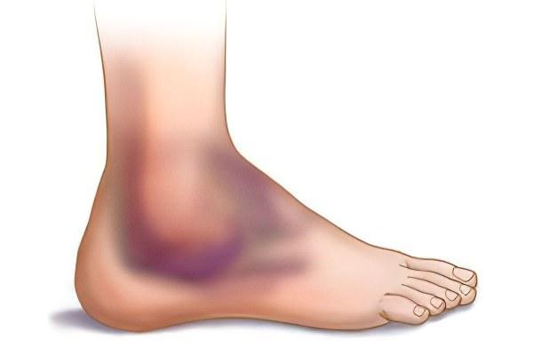 Ушиб ноги: лечение в домашних условиях