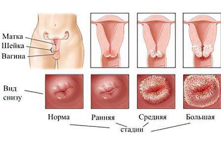 Занятия сексом с презервативом влияют на эрозию