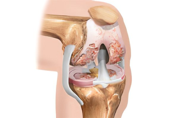 Операция гонартроз коленного сустава суставно-сосудистые
