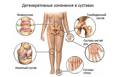 Можно ли остановить разрушение суставов после излечения хламидиоза остеопат вывих тазобедренного сустава