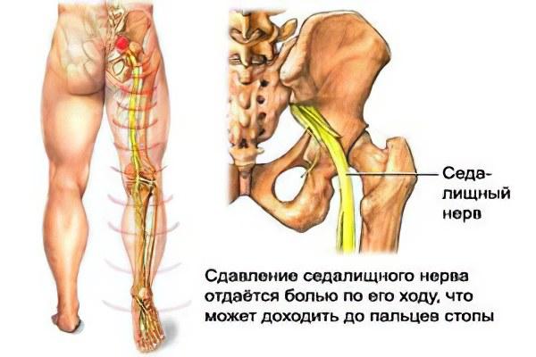 Защемление нервных окончаний в плечевом суставе симптомы температура тошнота ломота суставов