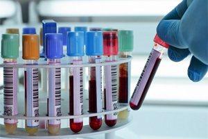Анализ венозной крови neu нормы результаты анализа крови
